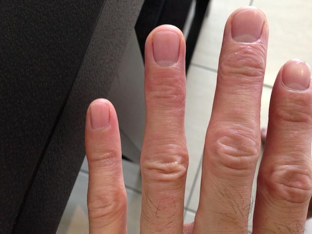プロテイン 手湿疹