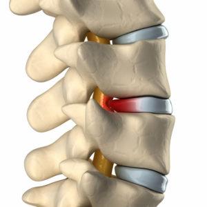 坐骨神経痛 腰痛 ストレッチ 悪化